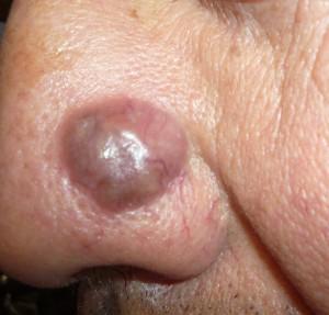 Dermatología en Guatemala