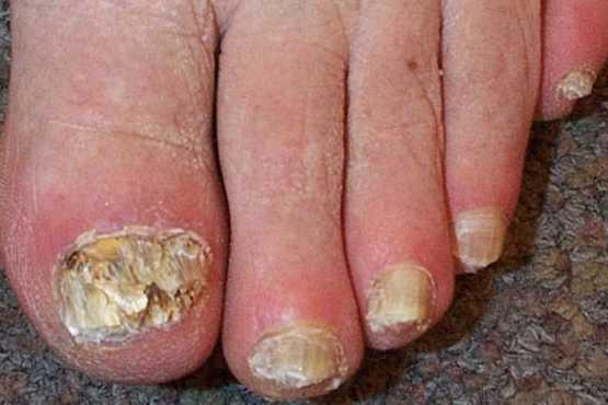 El tratamiento del hongo de las uñas en los pies por los medios públicos por la agua oxigenada